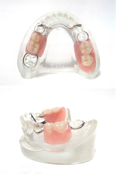 従来の入れ歯の場合